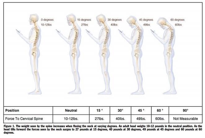 sindrome-text-neck-troppe-ore-con-lo-smartphone-in-mano-e-sempre-piu-ragazzi-hanno-problemi-alla-schiena-1